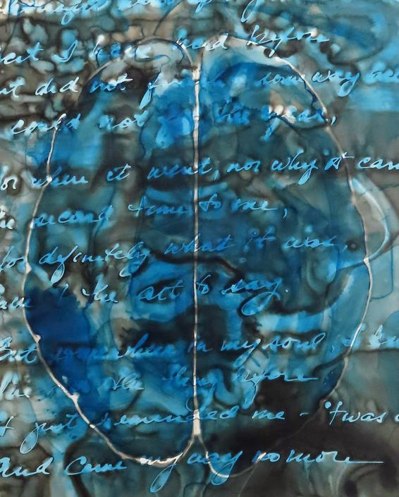 A Thought Went Up My Mind: Original ink painting on yupo of brain scan - neuroscience art poetry Dickinson by artologica