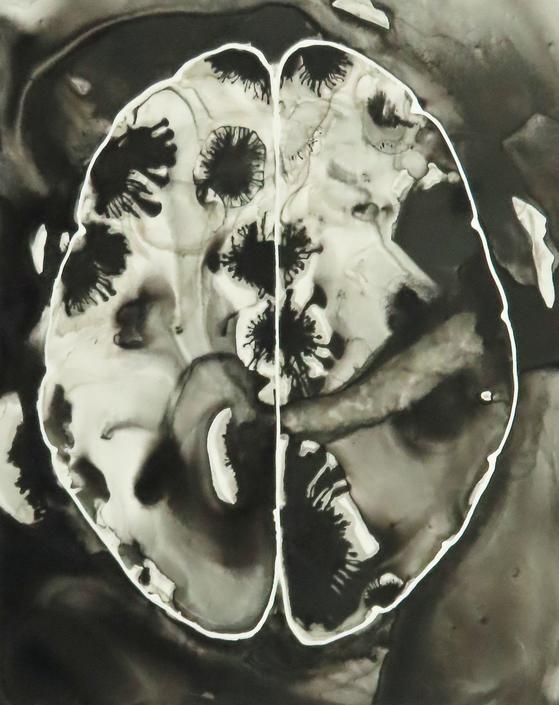 Areas of Concern Brain  -  original ink painting on yupo - neuroscience art by artologica