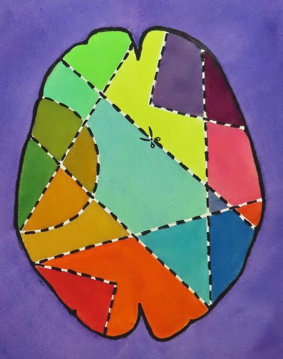 Brain Surgery for Beginners 4 -  original watercolor painting - neuroscience art by artologica