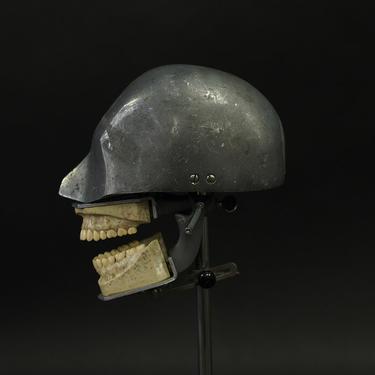 1930's Aluminum Dental Phantom with X-Ray Teeth Set